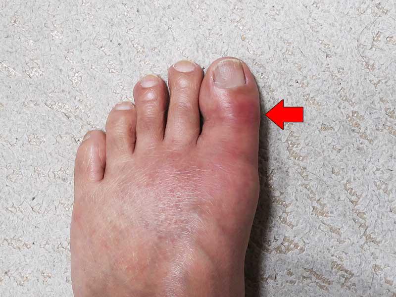 の 親指 腫れる 足